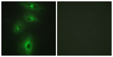 TMPRSS3 Antibody - Immunofluorescence analysis of HeLa cells, using TMPRSS3 Antibody. The picture on the right is blocked with the synthesized peptide.