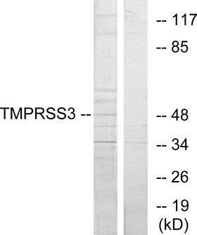 TMPRSS3 Antibody - Western blot analysis of lysates from HUVEC cells, using TMPRSS3 Antibody. The lane on the right is blocked with the synthesized peptide.