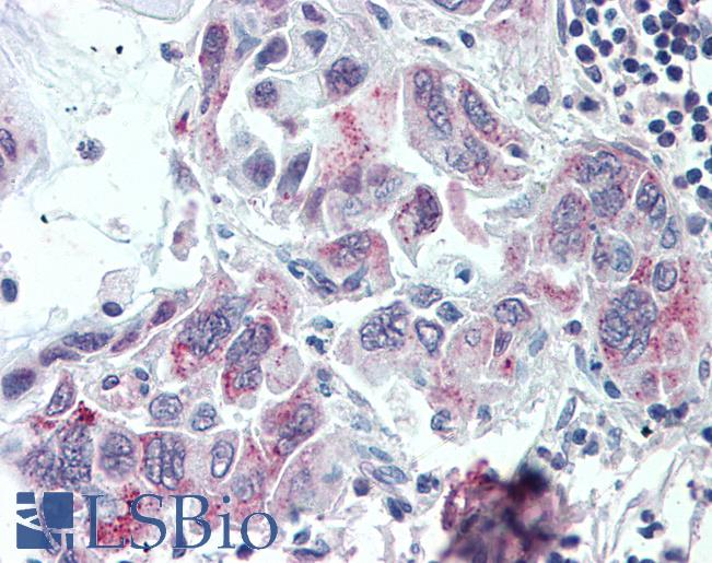 TMPRSS4 Antibody - Anti-TMPRSS4 antibody IHC of human Pancreas, Carcinoma. Immunohistochemistry of formalin-fixed, paraffin-embedded tissue after heat-induced antigen retrieval.