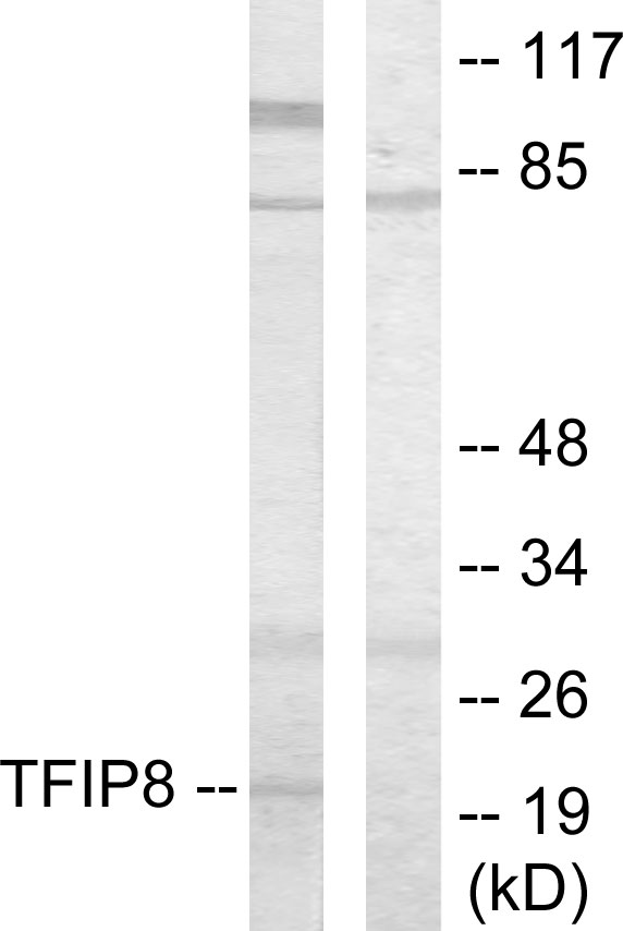 TNFAIP8 / SCC-S2 Antibody - Western blot analysis of lysates from HUVEC cells, using TFIP8 Antibody. The lane on the right is blocked with the synthesized peptide.
