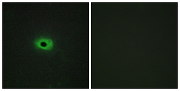 TNFSF12 / TWEAK Antibody - Immunofluorescence analysis of HeLa cells, using TNF12 Antibody. The picture on the right is blocked with the synthesized peptide.