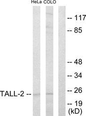 Western blot analysis of lysates from HeLa and COLO205 cells, using TALL-2 Antibody. The lane on the right is blocked with the synthesized peptide.