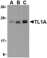 TNFSF15 / TL1A / VEGI Antibody - Western blot of TL1A in PC-3 cell lysates with TL1A antibody at (A) 0.5, (B) 1, and (C) 2 ug/ml.