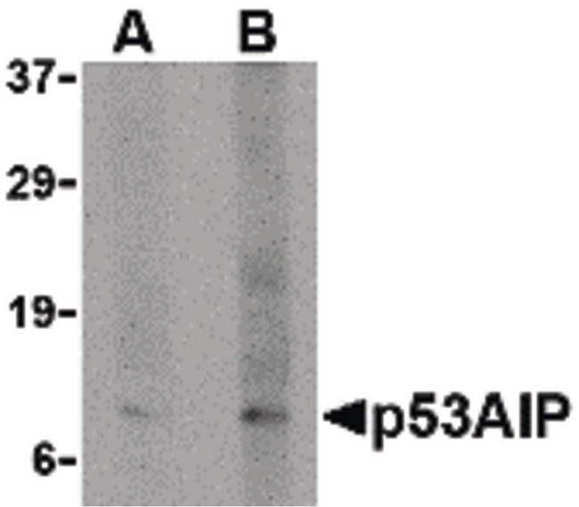 TP53AIP1 / p53 AIP1 Antibody - Western blot of p53AIP1 in HL60 cell lysate with p53AIP1 antibody at (A) 4 and (B) 8 ug/ml.