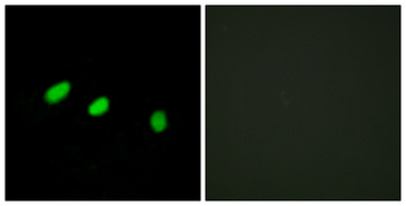 TRA2A Antibody - Immunofluorescence analysis of HeLa cells, using TRA-2 alpha Antibody. The picture on the right is blocked with the synthesized peptide.