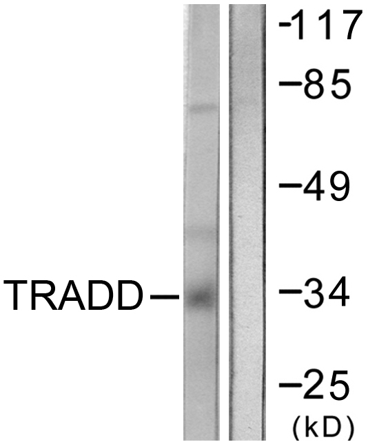 TRADD Antibody - Western blot analysis of lysates from COS7 cells, using TRADD Antibody. The lane on the right is blocked with the synthesized peptide.