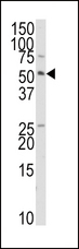 Western blot of anti-TRAIP Antibody in HepG2 cell line lysates (35 ug/lane). TRAIP(arrow) was detected using the purified antibody.