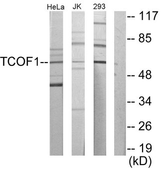 Western blot analysis of lysates from Jurkat, 293, HeLa cells, using TCOF1 Antibody. The lane on the right is blocked with the synthesized peptide.