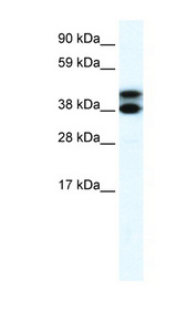 TRIM13 Antibody - TRIM13 / RFP2 antibody Western blot of Fetal lung lysate. This image was taken for the unconjugated form of this product. Other forms have not been tested.