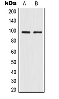 TRPV4 Antibody - Western blot analysis of TRPV4 expression in HepG2 (A); HeLa (B) whole cell lysates.