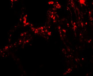 TRPV4 Antibody - Immunofluorescence of TRPV4 in human lung tissue with TRPV4 antibody at 20 µg/mL.