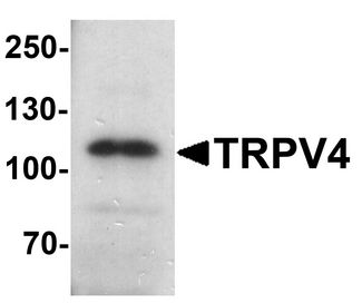 TRPV4 Antibody - Western blot analysis of TRPV4 in human testis tissue lysate with TRPV4 antibody at 1 ug/ml.