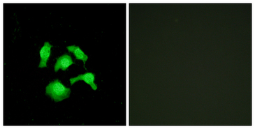 Immunofluorescence analysis of HepG2 cells, using TSC22D1 Antibody. The picture on the right is blocked with the synthesized peptide.