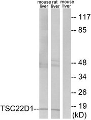 Western blot analysis of lysates from mouse liver and rat liver cells, using TSC22D1 Antibody. The lane on the right is blocked with the synthesized peptide.