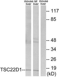 TSC22D1 / TSC22 Antibody - Western blot analysis of lysates from mouse liver and rat liver cells, using TSC22D1 Antibody. The lane on the right is blocked with the synthesized peptide.
