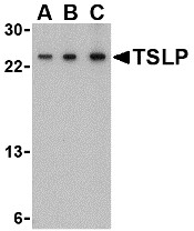 TSLP Antibody - Western blot of TSLP in A-20 cell lysate with TSLP antibody at (A) 0.5, (B) 1 and (C) 2 ug/ml.