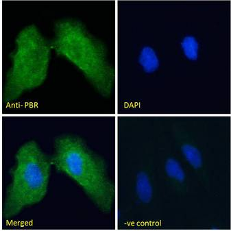 PBR (mouse) Antibody Immunofluorescence analysis of paraformaldehyde fixed HeLa cells, permeabilized with 0.15% Triton. Primary incubation 1hr (10ug/ml) followed by Alexa Fluor 488 secondary antibody (2ug/ml), showing cytoplasmic staining. The nuclear stain is DAPI (blue). Negative control: Unimmunized goat IgG (10ug/ml) followed by Alexa Fluor 488 secondary antibody (2ug/ml).