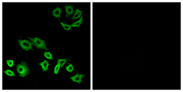 TTF / RHOH Antibody - Immunofluorescence analysis of A549 cells, using RhoH Antibody. The picture on the right is blocked with the synthesized peptide.