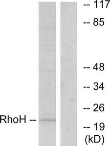 TTF / RHOH Antibody - Western blot analysis of lysates from HT-29 cells, using RhoH Antibody. The lane on the right is blocked with the synthesized peptide.