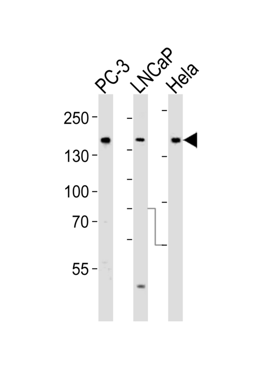 Tuberin / TSC2 Antibody - Western blot of lysates from PC-3, LNCaP, HeLa cell line (from left to right), using Tuberin (TSC2) Antibody. Antibody was diluted at 1:1000 at each lane. A goat anti-rabbit IgG H&L (HRP) at 1:5000 dilution was used as the secondary antibody. Lysates at 35ug per lane.