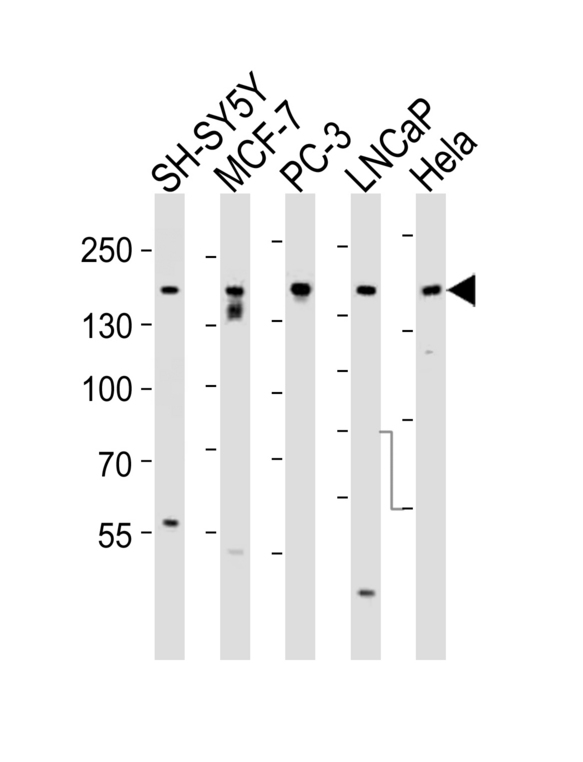 Tuberin / TSC2 Antibody - Western blot of lysates from SH-SY5Y, MCF-7, PC-3, LNCaP, HeLa, cell line (from left to right), using Tuberin (TSC2) Antibody. Antibody was diluted at 1:1000 at each lane. A goat anti-rabbit IgG H&L (HRP) at 1:5000 dilution was used as the secondary antibody. Lysates at 35ug per lane.