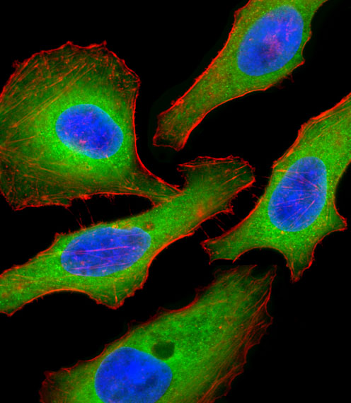 Tuberin / TSC2 Antibody - Fluorescent confocal image of HeLa cell stained with Tuberin (TSC2) Antibody (S1798). HeLa cells were fixed with 4% PFA (20 min), permeabilized with Triton X-100 (0.1%, 10 min), then incubated with Tuberin (TSC2) primary antibody (1:25, 1 h at 37°C). For secondary antibody, Alexa Fluor 488 conjugated donkey anti-rabbit antibody (green) was used (1:400, 50 min at 37°C). Cytoplasmic actin was counterstained with Alexa Fluor 555 (red) conjugated Phalloidin (7units/ml, 1 h at 37°C). Nuclei were counterstained with DAPI (blue) (10 ug/ml, 10 min). Tuberin (TSC2) immunoreactivity is localized to Cytoplasm significantly.