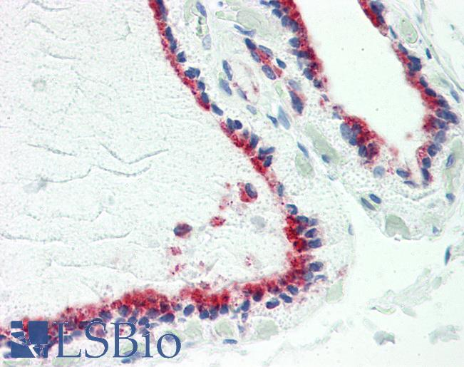Anti-TUSC2 / PAP antibody IHC staining of human thyroid. Immunohistochemistry of formalin-fixed, paraffin-embedded tissue after heat-induced antigen retrieval. Antibody dilution 1:100.
