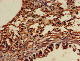 Immunohistochemistry of paraffin-embedded human lung tissue using TYRO3 Antibody at dilution of 1:100