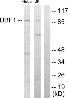 UBTF / UBF Antibody - Western blot analysis of lysates from HeLa and Jurkat cells, using UBF1 Antibody. The lane on the right is blocked with the synthesized peptide.