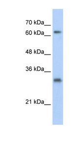 USP39 Antibody - USP39 antibody Western blot of HepG2 cell lysate. This image was taken for the unconjugated form of this product. Other forms have not been tested.
