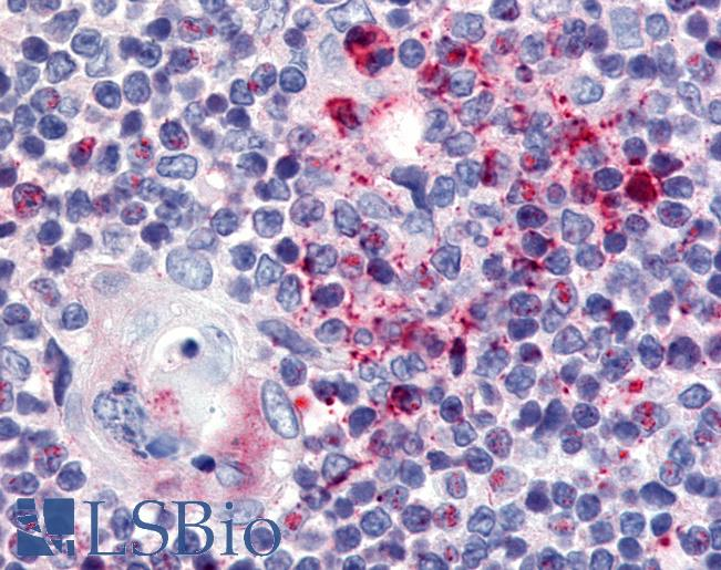 Anti-USP4 antibody IHC of human thymus. Immunohistochemistry of formalin-fixed, paraffin-embedded tissue after heat-induced antigen retrieval.