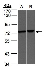 Sample(30 g of whole cell lysate). A: A431. B: Raji. 7.5% SDS PAGE. TRPV2 antibody diluted at 1:500.