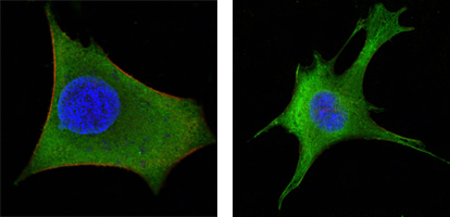 Figure3: Confocal immunofluorescence of HeLa (left) and 3T3-L1 (right) cells using WNT1 mouse monoclonal antibody (green). Red: Actin filaments have been labeled with DY-554 phalloidin. Blue: DRAQ5 fluorescent DNA dye.