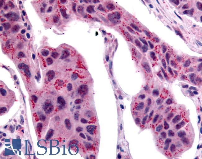 WNT2B Antibody - Anti-WNT2B antibody IHC of human Breast, Carcinoma. Immunohistochemistry of formalin-fixed, paraffin-embedded tissue after heat-induced antigen retrieval.