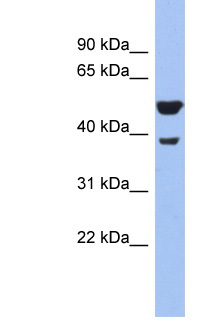 WNT3A Antibody - WNT3A antibody Western blot of Mouse Pancreas lysate. Antibody concentration 1 ug/ml. This image was taken for the unconjugated form of this product. Other forms have not been tested.