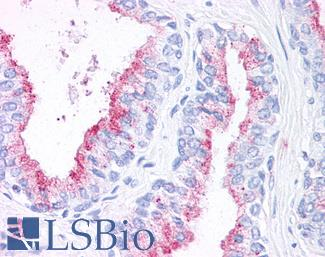 Anti-WNT5B antibody IHC of human prostate. Immunohistochemistry of formalin-fixed, paraffin-embedded tissue after heat-induced antigen retrieval.