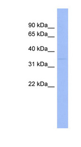 WNT7B Antibody - WNT7B antibody Western blot of Fetal Kidney lysate. This image was taken for the unconjugated form of this product. Other forms have not been tested.