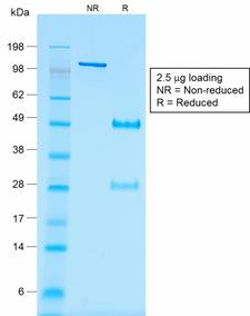 WT1 / Wilms Tumor 1 Antibody - SDS-PAGE Analysis of Purified Wilm's Tumor Mouse Recombinant Monoclonal Antibody (rWT1/857). Confirmation of Purity and Integrity of Antibody.