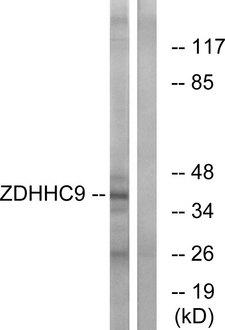 ZDHHC9 Antibody - Western blot analysis of lysates from COLO cells, using ZDHHC9 Antibody. The lane on the right is blocked with the synthesized peptide.