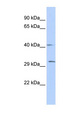 ZFP36 antibody Western blot of Fetal lung lysate. This image was taken for the unconjugated form of this product. Other forms have not been tested.