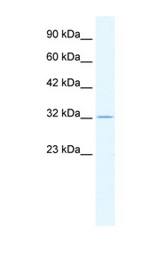 ZFP36 / Tristetraprolin Antibody - ZFP36 antibody Western blot of HepG2 cell lysate. This image was taken for the unconjugated form of this product. Other forms have not been tested.