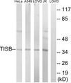 Western blot analysis of lysates from Jurkat, HeLa, A549, and LOVO cells, using TISB Antibody. The lane on the right is blocked with the synthesized peptide.