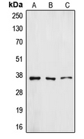 Western blot analysis of ZFP36L1 expression in A431 (A); HUVEC (B); A549 (C) whole cell lysates.