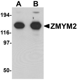 Western blot analysis of ZMYM2 in EL4 cell lysate with ZMYM2 antibody at (A) 0.125 and (B) 0.25 ug/ml.