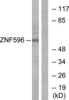 ZNF596 Antibody - Western blot analysis of lysates from Jurkat cells, using ZNF596 Antibody. The lane on the right is blocked with the synthesized peptide.