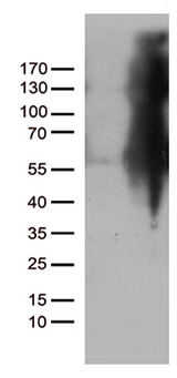 IKBKG / NEMO / IKK Gamma Antibody - HEK293T cells were transfected with the pCMV6-ENTRY control. (Left lane) or pCMV6-ENTRY IKBKG. (Right lane) cDNA for 48 hrs and lysed. Equivalent amounts of cell lysates. (5 ug per lane) were separated by SDS-PAGE and immunoblotted with anti-IKBKG. (1:500)