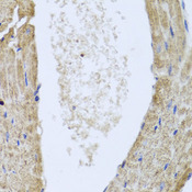 IL-10 Antibody - Immunohistochemistry of paraffin-embedded mouse heart.