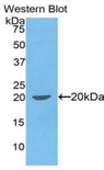 Western blot of recombinant IL1B.  This image was taken for the unconjugated form of this product. Other forms have not been tested.