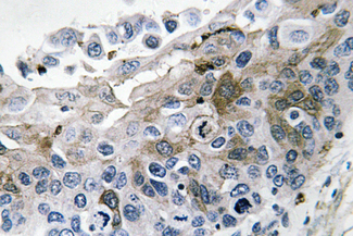 Immunohistochemistry analysis of IL-1β in paraffin-embedded human lung carcinoma tissue.
