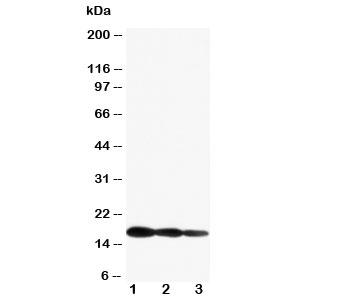 Western blot testing of IL1 beta antibody and Lane 1: Recombinant mouse IL1b protein 10ng; 2: 5ng; 3: 2.5ng